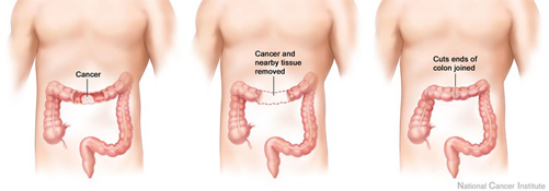 Colon cancer surgery with anastomosis